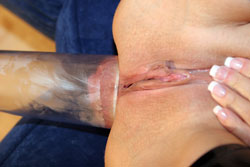 Anal Pumping Prolapse